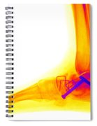 Ankle Fracture Spiral Notebook