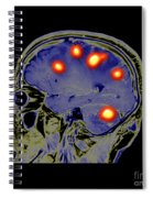 Brain Tumors Spiral Notebook