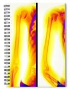 Broken Humerus Spiral Notebook