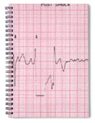 Cardioversion, 1 Of 2 Spiral Notebook