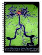 Cerebral Angiogram Spiral Notebook