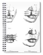 Cleft Lip Surgery, 1791 Spiral Notebook