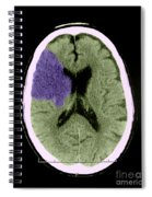 Ct Of Stroke Spiral Notebook