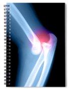 Elbow Injury Spiral Notebook