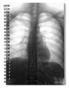 Human Chest Spiral Notebook