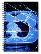 Mammogram Spiral Notebook