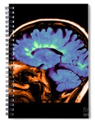 Mri Of Multiple Sclerosis Spiral Notebook