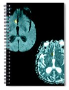 Mri Of Stroke Spiral Notebook