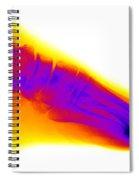 Normal Human Foot Spiral Notebook