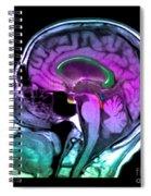Normal Pressure Hydrocephalus Spiral Notebook