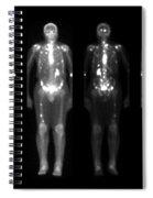Nuclear Medicine Bone Scan Spiral Notebook