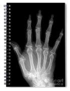 Osteoporosis And Degenerative Arthritis Spiral Notebook