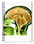 Sagittal View Of An Mri Of The Brain Spiral Notebook
