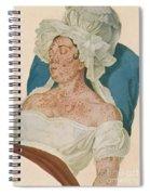 Scarlet Fever Spiral Notebook