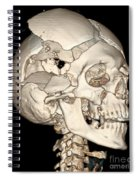 Three-dimensional Ct Reconstruction Spiral Notebook