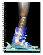 X-ray Of Broken Bones In Ski Boot Spiral Notebook