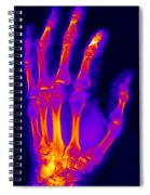 Finger Fracture Spiral Notebook