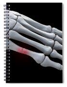 Broken Metatarsal Spiral Notebook