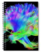 Fiber Tracts Of The Brain, Dti Spiral Notebook