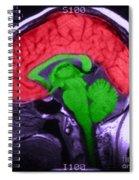 Mri Of Normal Brain Spiral Notebook