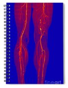 Atherosclerosis, Ct Angiogram Spiral Notebook