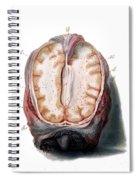 Brain, Anatomical Illustration, 1802 Spiral Notebook
