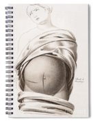 Cesarean Section, Incisions Spiral Notebook