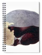 Enlarged Spleen With Infarct Spiral Notebook