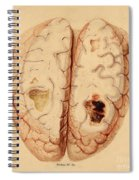 Extravasated Blood, Brain Spiral Notebook