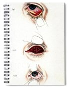 Eye Inflammations, Historical Spiral Notebook