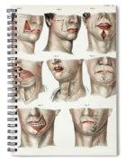 Facial Surgery, Illustration, 1846 Spiral Notebook