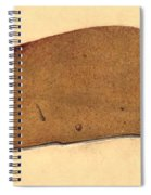 Fatty Liver, Pathology, Illustration Spiral Notebook