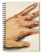 Hand With Roentgen Ray X-ray Spiral Notebook
