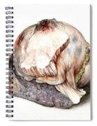Large Hyatid Cyst In Spleen Spiral Notebook