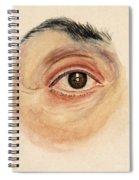 Melanoma Of Iris, Medical Illustration Spiral Notebook
