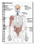 Multiple Sclerosis Symptoms Spiral Notebook