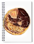 Muscle Degeneration, Fibrosis And Fat Spiral Notebook