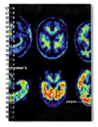 Normal And Alzheimer Brains, Pet Scans Spiral Notebook