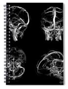 Normal Intracranial Venous System, 3d Ct Spiral Notebook