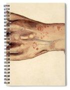 Psoriasis Guttata, Illustration, 1887 Spiral Notebook