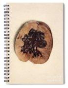 Renal Blood Clot, Kidney, Illustration Spiral Notebook