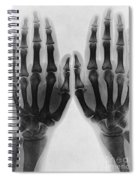 X-ray Of Two Normal Hands, 1896 Spiral Notebook