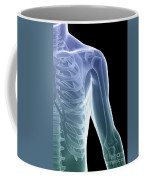 Bones Of The Shoulder And Chest Coffee Mug