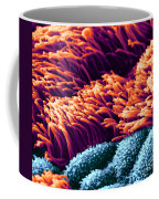 Cilia In Lung, Sem Coffee Mug