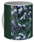 Dendrites Coffee Mug