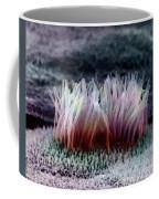 Epithelial Cells Coffee Mug