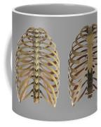 Thoracic Cage Coffee Mug