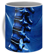 Thoracic Spine Coffee Mug