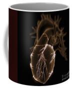 Coronary Blood Supply Coffee Mug