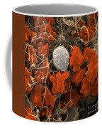 Blood Clot Coffee Mug